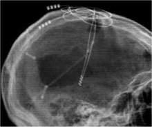 Implante de eletrodos no cérebro traz paciente de volta à vida