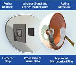 Retinas artificiais aproximam-se do uso prático