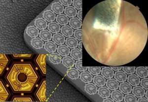 Olho biônico a laser usa retina artificial de células solares