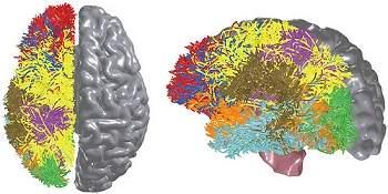 Computação cognitiva: IBM simula o cérebro de um gato