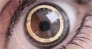 Lentes de contato inteligentes projetarão imagens na retina