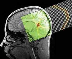 http://www.inovacaotecnologica.com.br/noticias/imagens/010160100503-balas-de-som.jpg