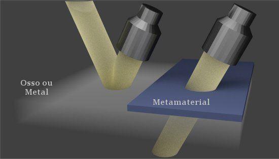 Metamaterial faz ultra-som penetrar em ossos e metais