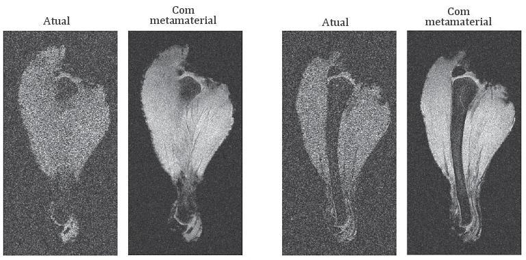 Metamaterial revoluciona ressonância magnética e imagens médicas